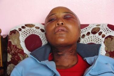 Millicent Gaika, un'altra delle vittime degli stupri correttivi in Sud Africa, lezgetreal.com