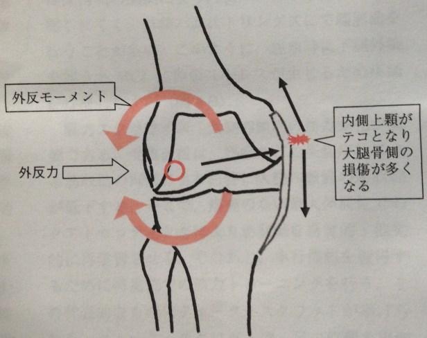 内側側副損傷