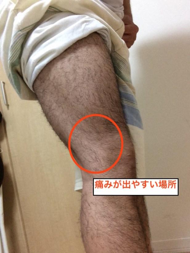 長脛靭帯炎