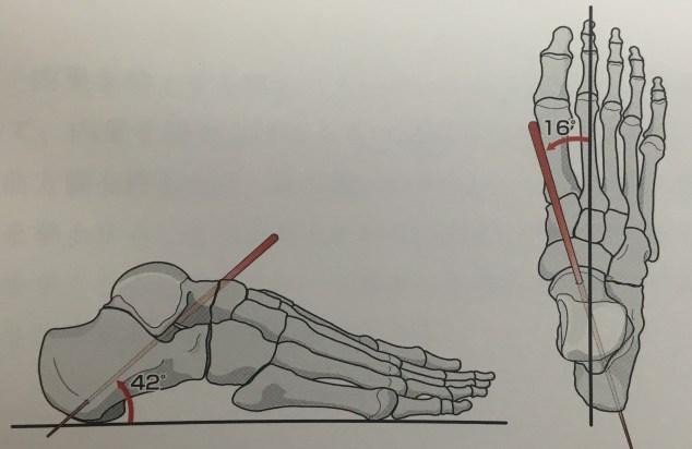 距骨下関節 運動軸