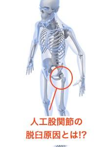 人工股関節全置換術の脱臼の原因とは? 手術や構造による影響についてご紹介!