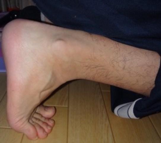 足趾 屈筋