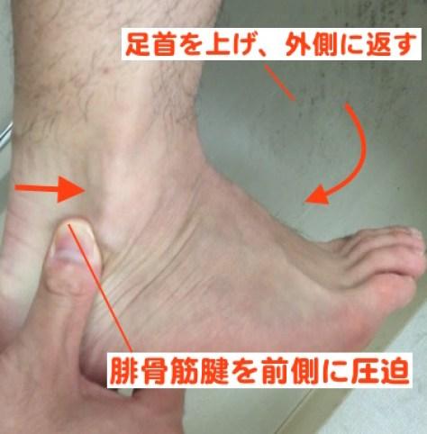 腓骨筋腱脱臼 検査