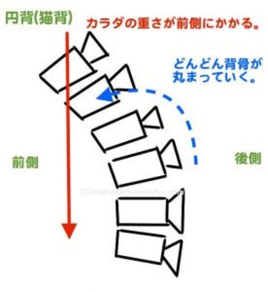 円背-min