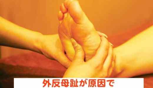 外反母趾が原因で足のタコが痛くなる?! 外反母趾の手術をするとどうなるのかご紹介!