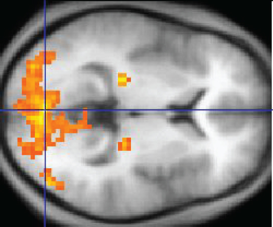 Ошибки в ПО для МРТ-сканеров ставят под сомнение 40 тыс. научных исследований
