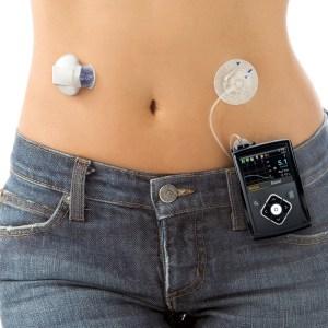 Уже в 2018 году диабетики получат «кибернетическую» поджелудочную железу, которая сможет определять уровень глюкозы и вводить нужное количество инсулина