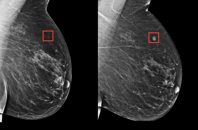 Разработан алгоритм, способный наоснове маммографии спрогнозировать риск развития рака груди на пять лет вперед