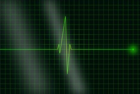 Разработанный американскими учеными алгоритм способен выявлять мерцательную аритмию, даже если на ЭКГ все якобы в порядке