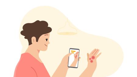 До конца 2021 года Google добавит в поиск экспериментальную функцию скрининга 288 заболеваний кожи — достаточно будет навести камеру смартфона