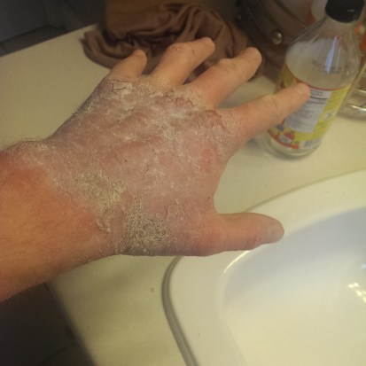The white film is from using Sudocream on my hands