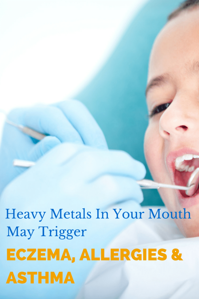 Allergies Mouth 101
