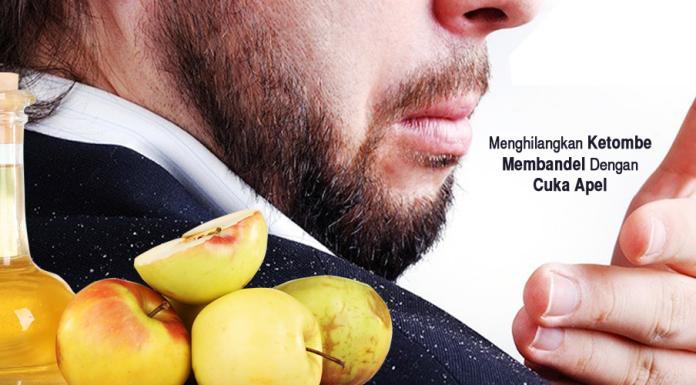 Manfaat Cuka Apel untuk Atasi Ketombe Secara Alami