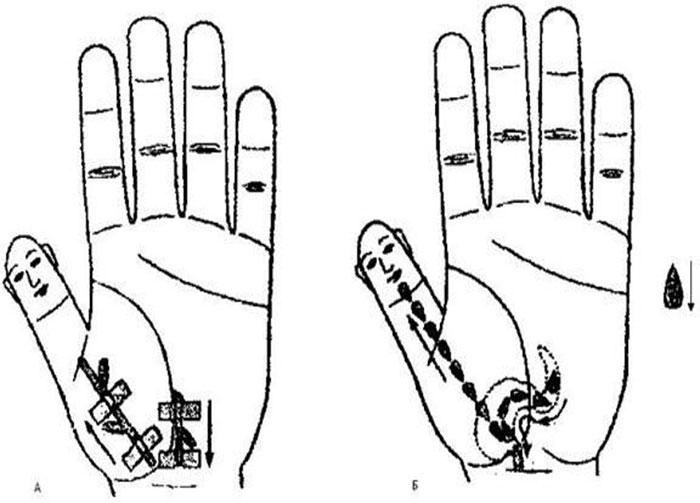 terapi stroke karcsúsító)