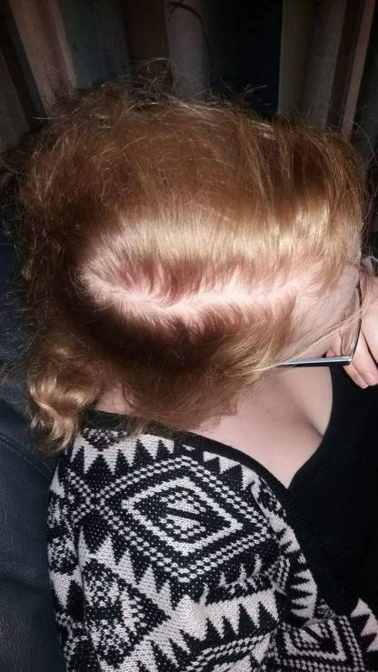 Hair starting tp thin (approx. 32 weeks pregnant)