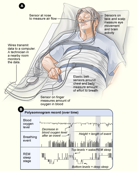sleep apnea test wires