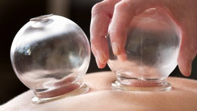 Photo of Cupping therapy – a dying tradition in Goa?