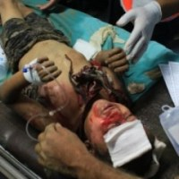 Gaza Under Attack 15 July 2014 Photos
