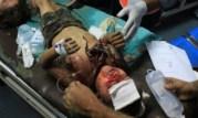 Gaza-under-attack-15-July-2014-photos-images-068