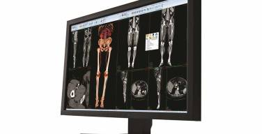 Carestream Health vende negocio de TI de salud a Philips