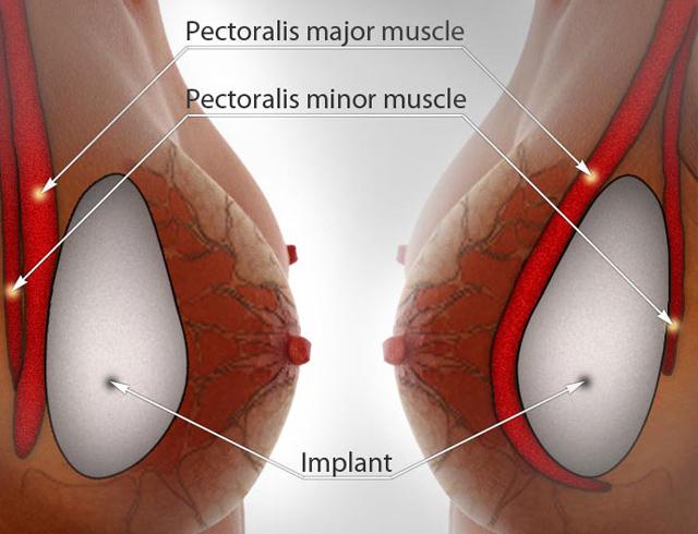 marirea-sanilor-cu-implanturi-siliconice-1