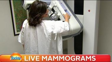 Lisa-having-mammogram