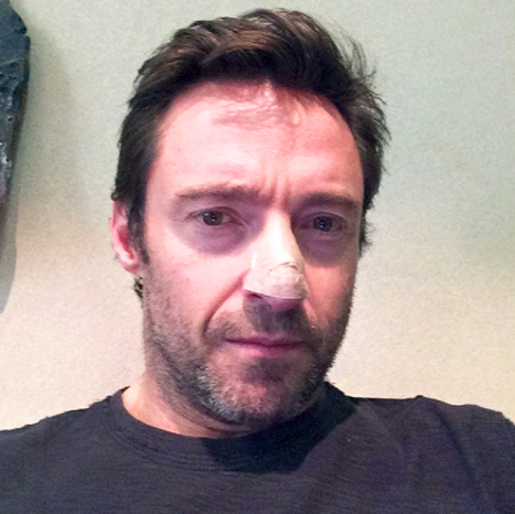hugh-jackman-skin-cancer