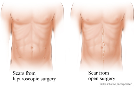 Comparison of laparoscopic surgery scars and open surgery scar