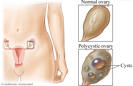 Location of the ovaries with closeup of a normal ovary and a polycystic ovary