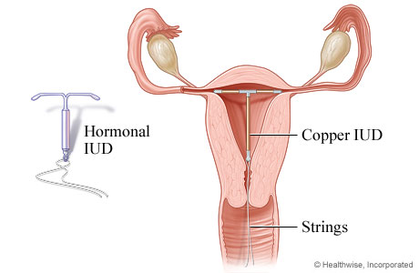 Picture of an intrauterine device (IUD)