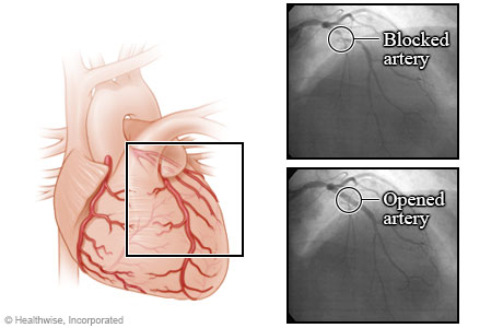 Arteries before and after an angioplasty
