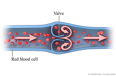 Cross section of vein, showing blood flowing normally through valve
