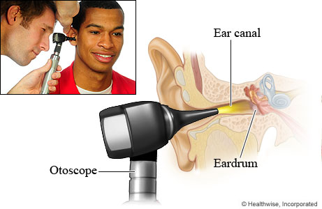 Pictures of the position of an otoscope for an ear exam