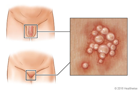 Location of genital herpes, with close-up of blisters