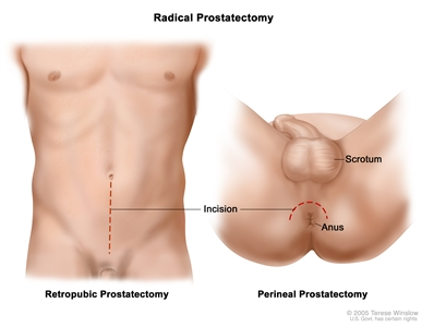 Two panel drawing showing two ways of doing a radical prostatectomy; in the first panel, dotted line shows where incision is made through the wall of the abdomen for a retropubic prostatectomy; in the second panel, dotted line shows where incision is made in area between the scrotum and the anus for a perineal prostatectomy.