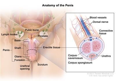 Anatomy of the penis; drawing shows the base, shaft, glans, foreskin, and urethral opening. Also shown are the scrotum, prostate, pubic bone, and lymph nodes. An inset shows a cross section of the inside of the penis, including the blood vessels, dorsal nerve, connective tissue, erectile tissue (corpus cavernosum and corpus spongiosum), and urethra.