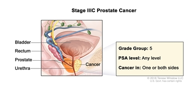Stage IIIC prostate cancer; drawing shows cancer in one side of the prostate. The PSA can be any level and the Grade Group is 5. Also shown are the bladder, rectum, and urethra.
