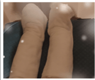 蒸しタオルを足に巻いた写真