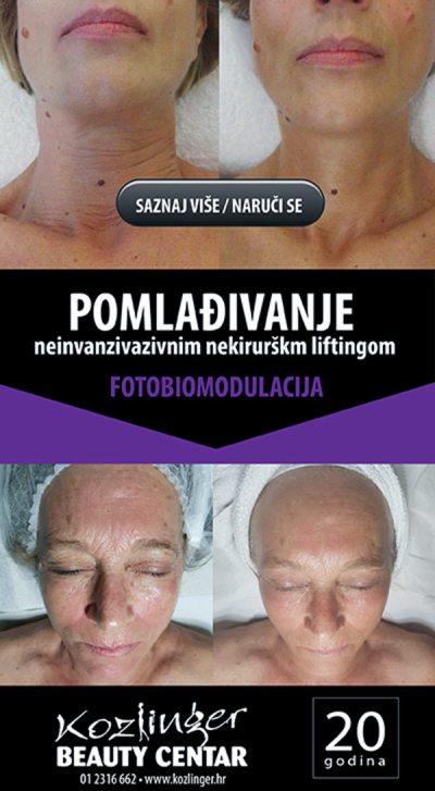 Fotobiomodulacija, je revolucionarna svjetlosna terapija u kozmetičkoj upotrebi koja potiče regeneraciju, pomlađuje i uklanja bore, herpes, akne, ožiljke, ubrzava cirkulaciju, povećava elastičnost kože te dovodi do pomlađivanja, poboljšanja izgleda kože, bioobnove, moćan neinvanzivan nekirurški lifting jedino dostupan u salonu Kozlinger u Zagrebu, moćan neinvanzivan nekirurški lifting,Kozmetički tretmani, terapija lica i tijela, depilacija, masaža, trajni make-up, ugradnja i njega umjetnih noktiju