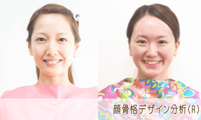 顔骨格デザイン分析(R)