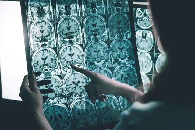 Neurologists Dissecting Results From Brain Scans