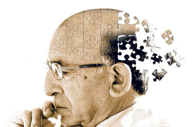 """Alzheimer's and Dementia"""