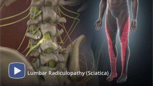 Sciatica, Sciatic Nerve, Sciatica Nerve Pain, Radiculopathy