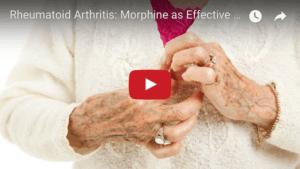 Rheumatoid Arthritis Morphine Placebo