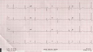 49 Y M EKG