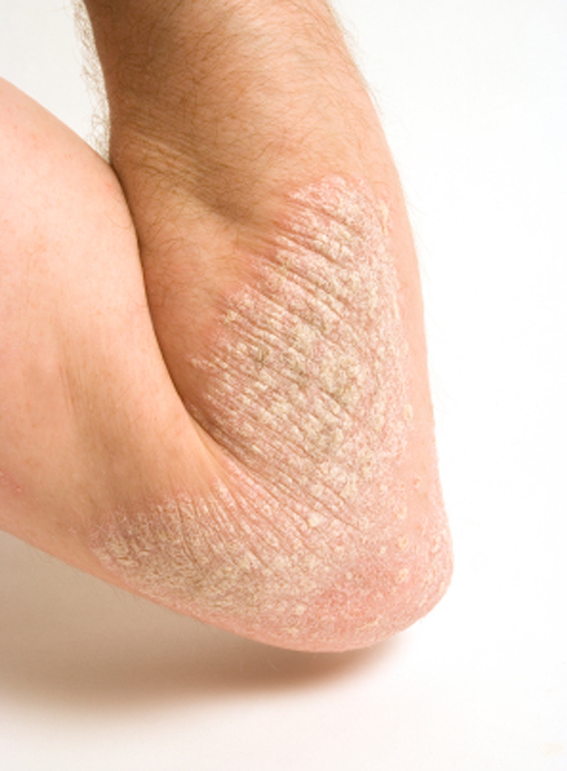 Acupuncture Treatment For Psoriasis