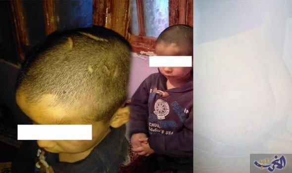 الوكيل العام يأمر بسجن معذبة ابن أخيها بسطات