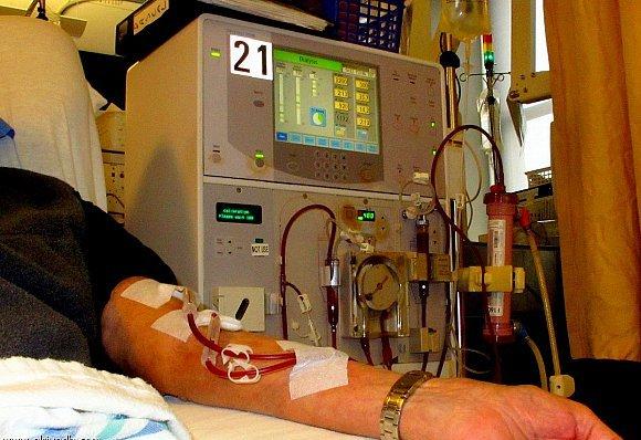 3 ملايين مغربي مصابون بهذا المرض القاتل وهذه أسباب المرض