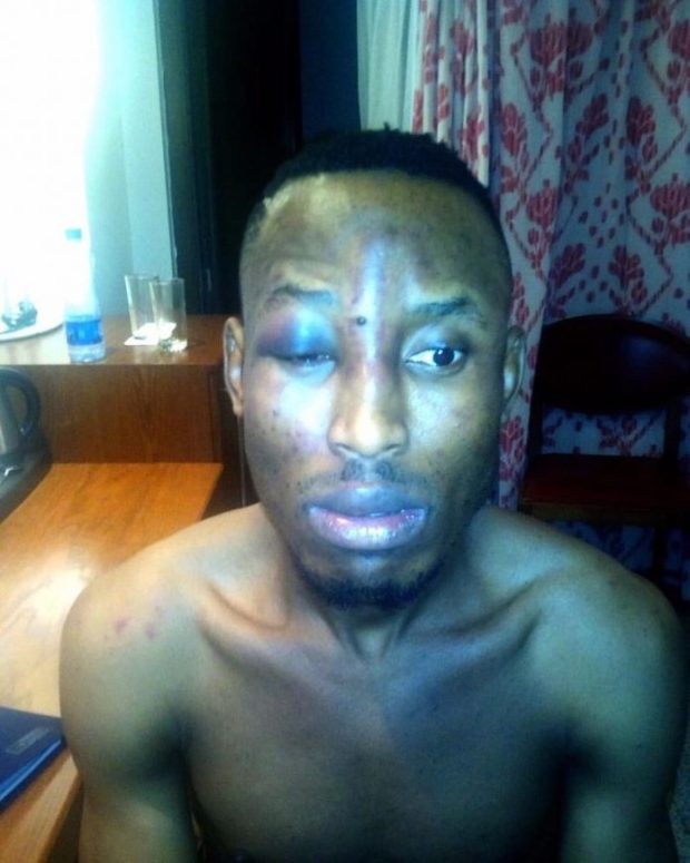 Mr 2Kay robbed at Eko Hotels 696x870 - Top 10 Most Controversial Moments In Nigerian Music 2017