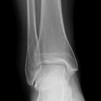broken-ankle-post